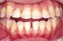非抜歯症例/転医時 写真2