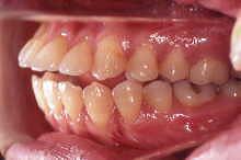 非抜歯症例/転医時 写真4