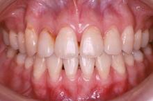 抜歯治療終了後 写真2