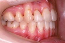 抜歯治療終了後 写真3