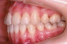 抜歯治療終了後 写真4