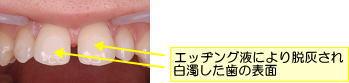 エッヂング液により脱灰され白濁した歯の表面