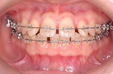 ワイヤーが直線的になり歯の傾斜が改善