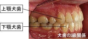 犬歯のI級関係