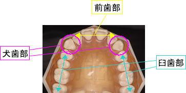 犬歯部 前歯部 臼歯部