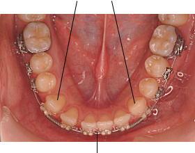 犬歯移動の反作用で、下顎前歯部のスペースを閉鎖する
