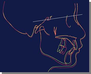 黄色いラインは治療開始時、赤いラインは終了時の状態
