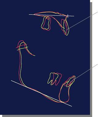 上顎骨と下顎骨
