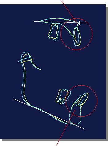 上顎前歯と下顎前歯の移動した様子
