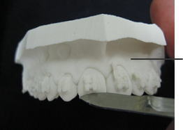 印象採得によって作成された石膏の作業用模型を、調整している所