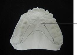 上顎リテーナーの外形線を噛む面から見た所