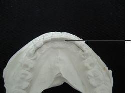 完成した下顎のFSWタイプリテーナー