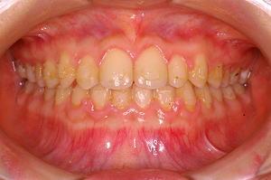 歯面にボンディング材やセメントが残っている状態