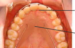 上顎前歯に装着されたFSWタイプリテーナーと上顎に装着されたベッグタイプリテーナー