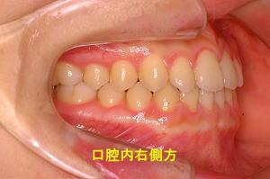口腔内右側方