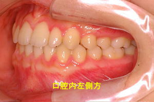 口腔内左側方