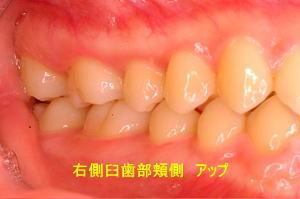 右側臼歯部頬側 アップ