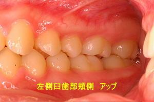左側臼歯部頬側 アップ
