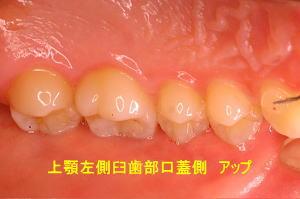 上顎左側臼歯部口蓋側 アップ
