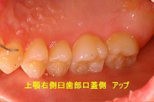 上顎右側臼歯部口蓋側 アップ