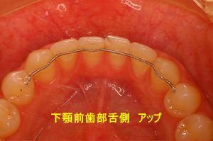 下顎前歯部舌側 アップ