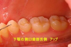 下顎右側臼歯部舌側 アップ