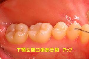 下顎左側臼歯部舌側 アップ