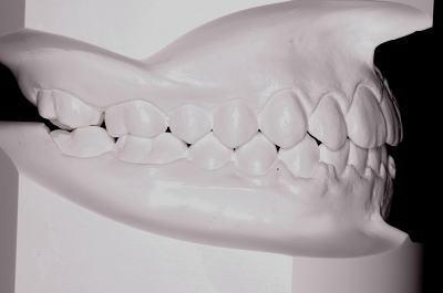 口腔内模型 右