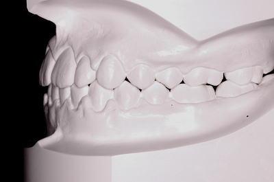 口腔内模型 左