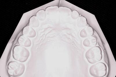 口腔内模型 上顎