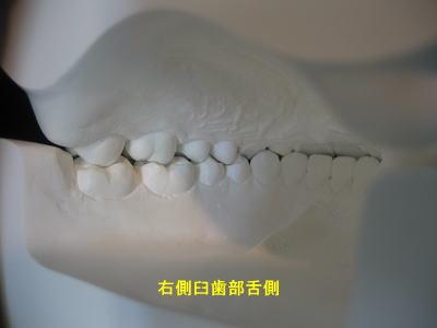 口腔内模型 右側臼歯部舌側