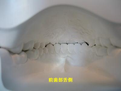 口腔内模型 前歯部舌側