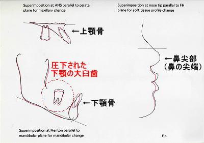 初診時側面とリムーブ時セファロを、上顎骨はANS点、下顎骨はMe点で重ね合わせたトレース図(左)と初診時側面とリムーブ時セファロ軟組織を、nose tip(鼻の尖端)で重ね合わせたトレース図(右)