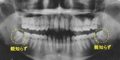 初診時パノラマX線写真