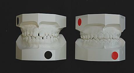 初診時とリムーブ時の口腔内模型(正面)