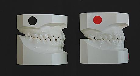 初診時とリムーブ時の口腔内模型(右