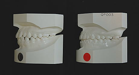 初診時とリムーブ時の口腔内模型(左