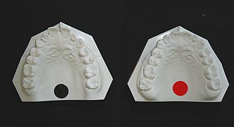 初診時とリムーブ時の口腔内模型(上顎