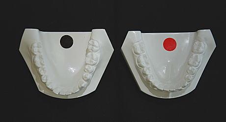 初診時とリムーブ時の口腔内模型(下顎