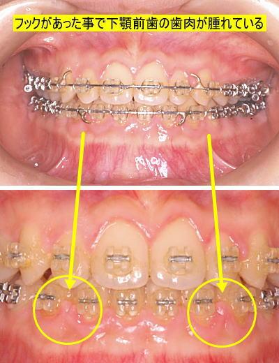 フックがあったことで下顎前歯の歯肉が腫れている