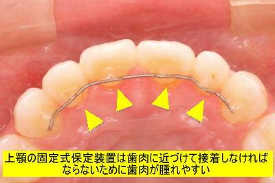 上顎の固定式保定装置は歯肉に近づけて接着しなければならないために歯肉が腫れやすい