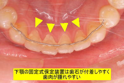 下顎の固定式保定装置は歯石が付着しやすく歯肉が腫れやすい