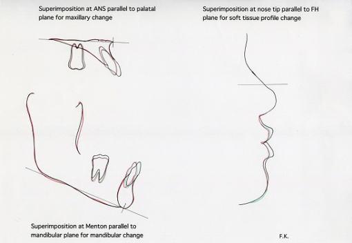 上顎骨、下顎骨の部分的な重ね合わせと側貌における口元の重ね合わせ