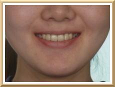 スマイルライン(スマイル時の口唇)と上顎前歯の関係 写真1