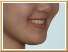 スマイルライン(スマイル時の口唇)と上顎前歯の関係 写真2