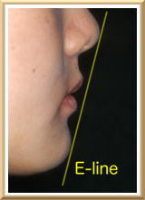 E-lineを結んだ線の内側に口唇が位置する