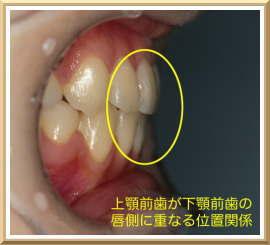 上顎前歯が下顎前歯の唇側に重なる位置関係