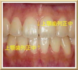 左右対称の歯軸、上下歯列正中線の一致