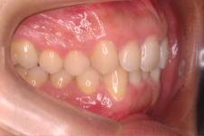 叢生症例 治療前 写真2