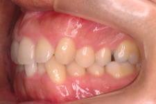 叢生症例 治療前 写真3